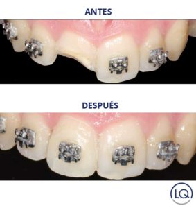 ortodoncia las palmas clinica dental lopez quevedo
