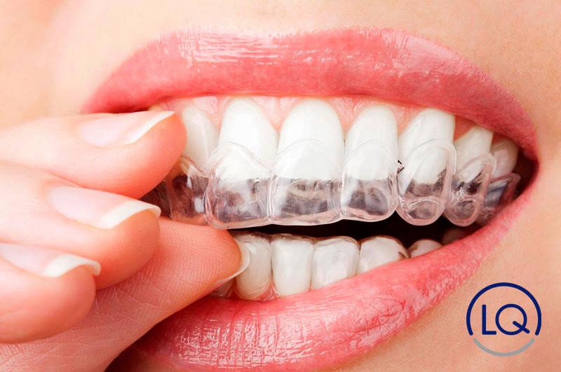 beneficios de la ortodoncia invisible-Invisalign-dentistas las palmas-ortodonia las palmas