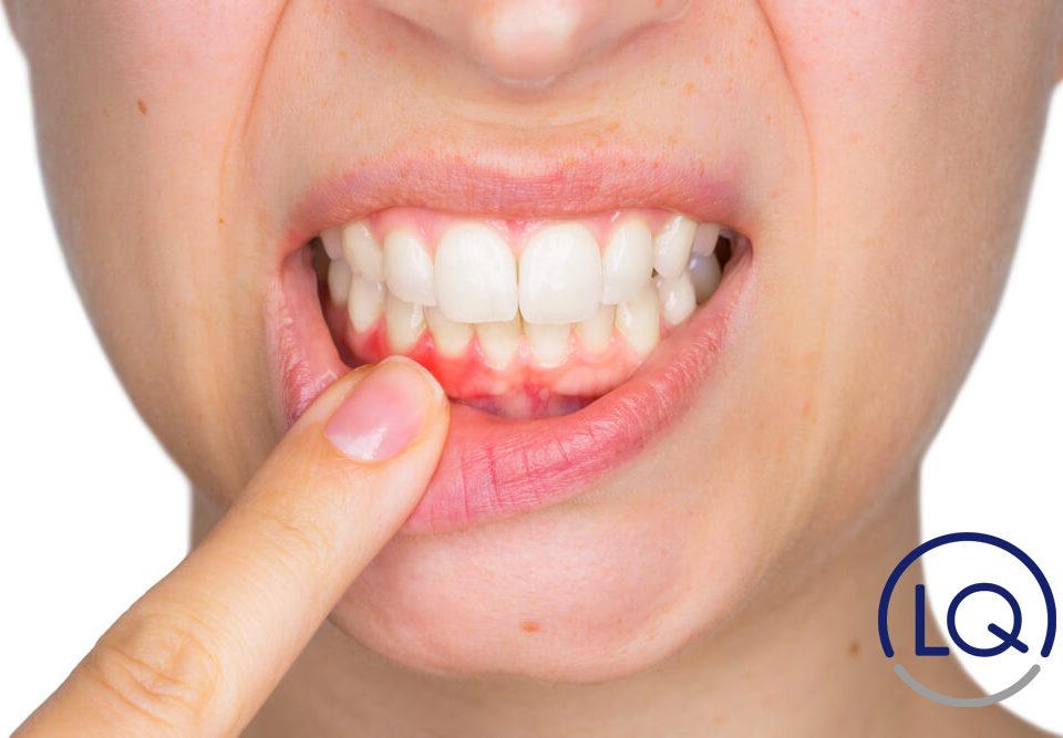 periodontitis-gingivitis-periodoncista las palmas-odontologos las palmas-dentistas las palmas-clinica lopez quevedo