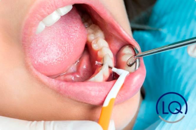 caries interproximal-caries-dentistas en las Palmas-ol