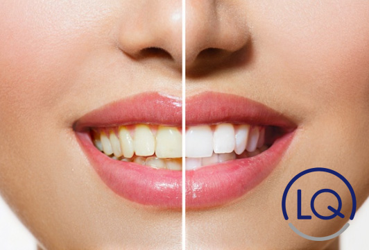 manchas en los dientes-manchas dentales-clinica lopez quevedo-dentistas en las palmas