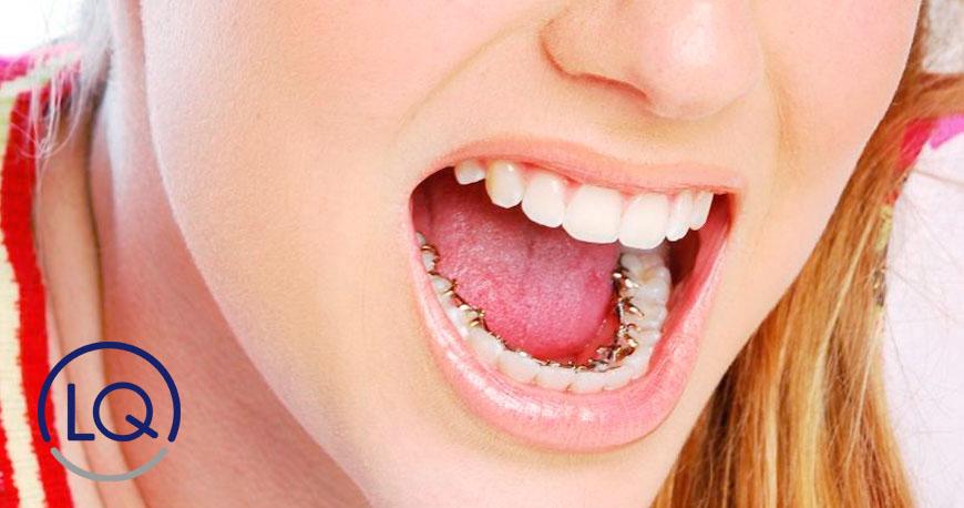 ortodoncia lingual-dentistas las palmas
