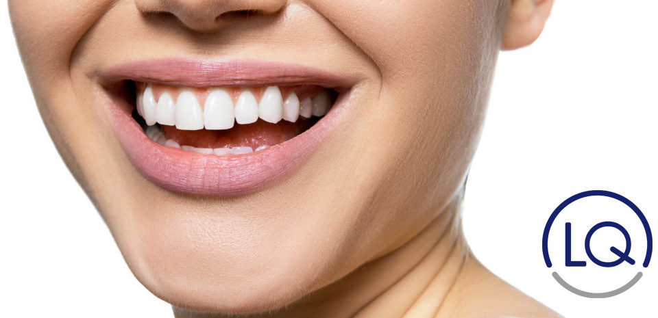 carillas dentales las palmas-dentistas en las palmas-odontologos en las palmas-lq clinica lopez quevedo-