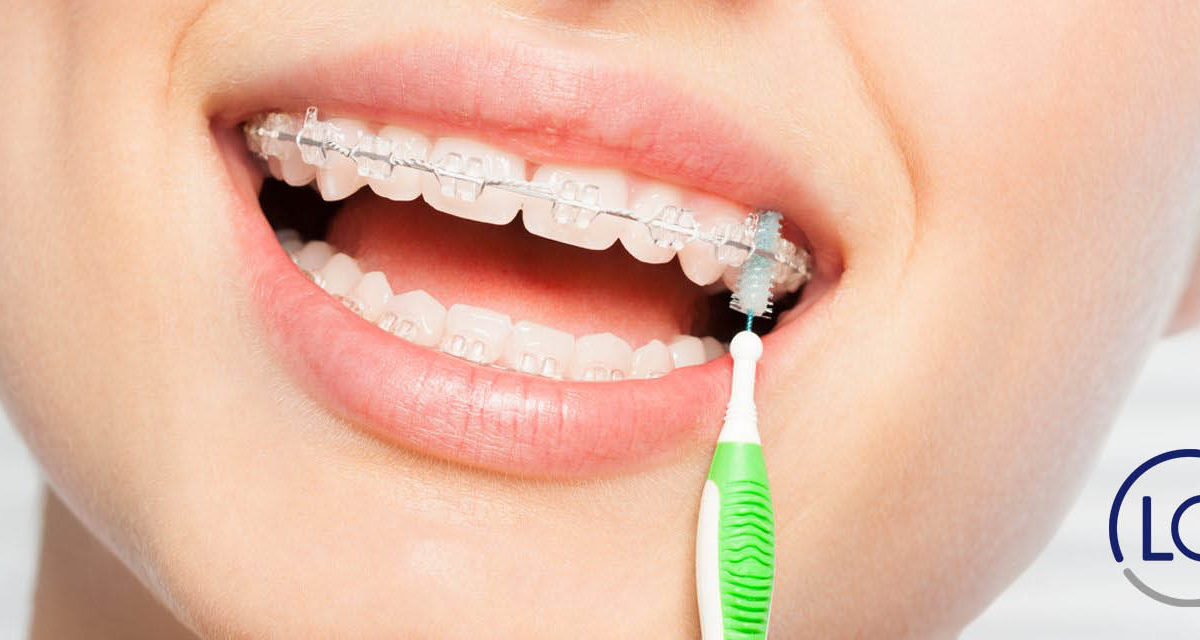 cómo limpiar los brackets-aparato de ortodoncia-dentistas Las Palmas-dentista las palmas-clinica dental las palmas-clinica lopez quevedo