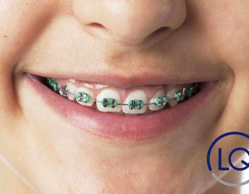 ortodoncia para niños-ortodoncia infantil-clinica lopez quevedo-tipos de ortodoncia