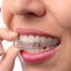 ortodoncia invisible invisalign-dentistas las palmas-clinica lopez quevedo