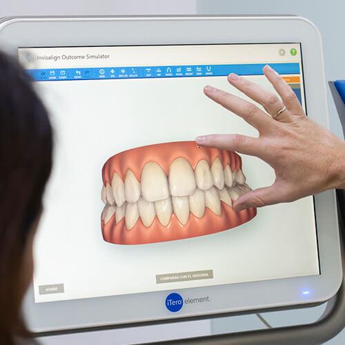 Ortodoncia invisible Las Palmas